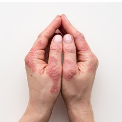 Psoriasis and Other...
